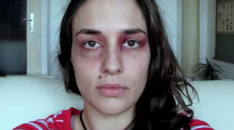 Les 5 signes de violence conjugale